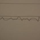 ball scrwe lead accuracy chart